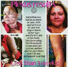 Amazing PLEXUS EASE CREAM & PLEXUS BODY CREAM testimony!!  Message me if you would like to give plexus a try!