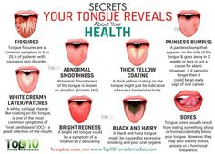 Secrets Your Tongue Reveals About Your Health....