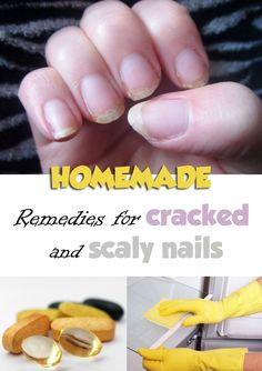 Remedies for cracked and scaly nails - nbeautytips.com