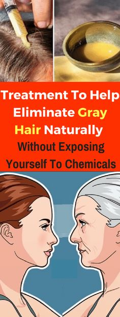 To Help Eliminate Gray Hair Naturally Without Exposing Yourself To Chemicals! Treatment To Help Eliminate Gray Hair Naturally Without Exposing Yourself To Chemicals! Here, we've listed 10 steps to help you keep in tip-top shape 1 Diy Beauty Life Hacks, Natural Beauty Tips, Natural Hair Styles, Beauty Tips And Tricks, Health Tonic, Lose 15 Pounds, 45 Pounds, Healthy Exercise, Health And Wellbeing