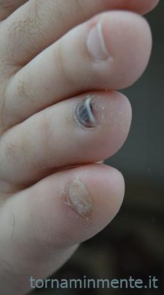 Fungalor Funziona? E Una Truffa?!?! | Tornaminmente Nails, Health, Cream, Finger Nails, Ongles, Health Care, Nail, Healthy, Salud