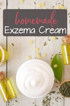 Are you currently struggling from Eczema? Then this try this homemade Eczema cream recipe made with all natural ingredients. How To Treat Eczema, Green Living Tips, Green Cleaning, Raising Kids, Natural Remedies, Food To Make, Treats, Homemade, Lungs
