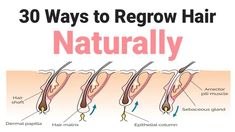 30 Ways to Regrow Hair Naturally