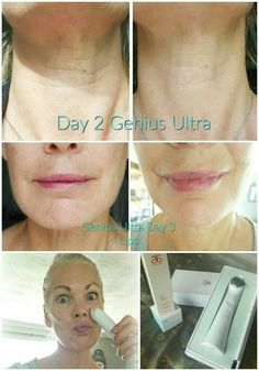 Arbonne Genius Ultra Before and After Results. WOW! Shop at http://luzmariaheredia.arbonne.com