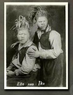 george and willie albino blacks