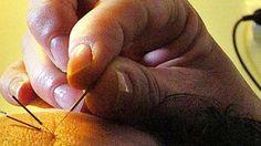 Hjelper akupunktur mot bivirkningene av cellegift? Det skal forskerne nå finne svaret på. (Foto: RONALD JOHANSEN)