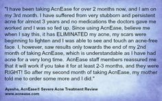 AcnEase ELIMINATED Ayesha's severe #acne! www.acnease.com