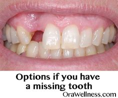 What are your options? – OraWellness If you are missing teeth or even a single missing tooth, you have several options to restore your precious smile. FREE guidebook here. Fix Teeth, Teeth Care, Teeth Whitening Remedies, Natural Teeth Whitening, Teeth Health, Healthy Teeth, Oral Health, Chipped Tooth Repair, Missing Teeth