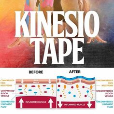 @Regrann from @physioosteogram: #Repost @kinectmd - KINESIO TAPE . . Kinesiology tape is another sports and injury device that has appeared on the market in great force over the last few years but what is it and what is it supposed to do? The answer is actually quite different from what most people would expect!The theory behind kinesiology taping is that the tape (when applied correctly) gently lifts the layer of skin and tissue beneath that covers an underlying muscle so that blood and…