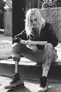 Lauren Wasser, Model Who Lost Leg To Toxic Shock Syndrome, Lands Huge Christmas Campaign