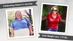 before after gastric bypass rny hsmcc1