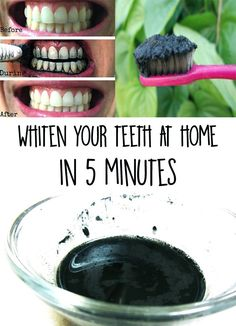 Treatments for white teeth are expensive and unhealthy? Find out a natural solution for whiten your teeth at home in 5 minutes using charcoal.- White teeth!
