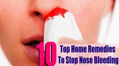 Nosebleed - How to Stop a Nosebleed Fast Ayurvedic Home Remedies, Natural Remedies, Stop Nose Bleeds, Medical Problems, Nail Care, Allergies, Tips, Natural Home Remedies, Nail Manicure