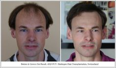 Surgical Hair Restoration With Progressive Levels Of Hair Loss Hair Restoration, Hair Transplant, Hair Loss, Medical, Tips, Losing Hair, Medicine, Hair Falling Out, Med School