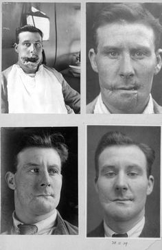 """"""" Patients of surgeon Harold Gillies during WWI and WWII """" Okay, these photographs pissed me off a bit, because they don't show off how much of a genius Dr. Harold Gillies, the father of modern. World War One, First World, Que Horror, Human Oddities, Vintage Medical, Medical Problems, Medical History, Illustrations, Plastic Surgery"""