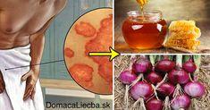 6 domácich receptov proti mykózam kože na rôznych častiach tela Angina, Bronchitis, Lunge, Vegetables, Tela, Home Remedies For Asthma, Losing Hair, Healthy Lifestyle Habits, Honey