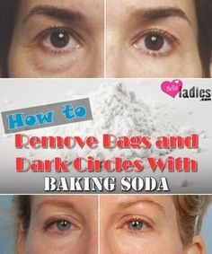 How to Remove Bags and Dark Circles With Baking Soda #removedarkcircles #removeundereyecircles #darkcirclesandbags