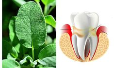 PARADONTOZA – cauze, simptome, tratament naturist Health, Plants, Salud, Health Care, Flora, Plant, Healthy, Planting