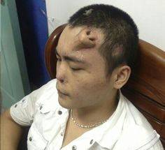 Voor een neustransplantatie wordt er bij deze man uit Japan eerst een neus op zijn voorhoofd gekweekt. Daarna zal deze nieuwe neus zijn oude neus vervangen