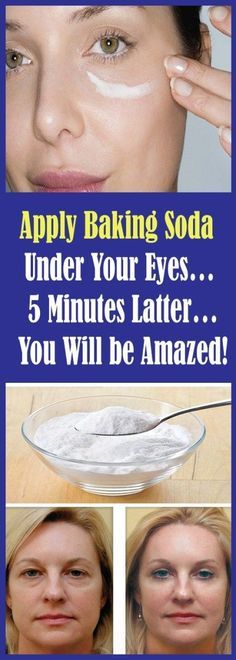 Baking Soda Shampoo: It will Make Your Hair Develop Like It .- Baking Soda Shampoo: It will Make Your Hair Develop Like It is actually Magic! Baking Soda Shampoo: It will Make Your Hair Develop Like It is actually Magic! Baking Soda Under Eyes, Baking Soda For Skin, Baking Soda Shampoo, Face Baking, Baking Powder For Hair, Healthy Beauty, Healthy Skin, Health And Beauty, Healthy Life