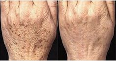 Normalmente, as manchas que aparecem com a idade localizam-se nos ombros, rosto, mãos e outras partes da pele, especialmente aquelas expostas ao sol.Essas manchas aparecem em adultos com mais de 40 anos, mas às vezes as pessoas mais jovens também são afetadas.
