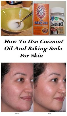 Instead of throwing money in search of a product that works for your skin, try doing home with just two ingredients that you might already have: coconut oil and baking soda. Baking soda gives this masks a number of amazing features. It exfoliates skin, removing dead skin cells layer and cleans in-depth skin.