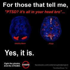 Image result for brain vs ptsd brain