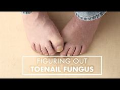 Toenail fungus is irritating! Learn how to avoid it from Dallas Podiatrist Dr. Reza Mobarak.