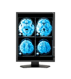 NEC MD242C2 Superior screen performance (1000:1 contrast ratio, 1920 x 1200 native resolution, 350 cd/m², 180 cd/m² calibratedbrightness). Available at www.hiliex.com