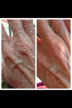 NeriumAD isn't only for your face! Use it on your hands, too! www.advancedhealth.nerium.com ~ http://www.advancedhealth.arealbreakthrough.com