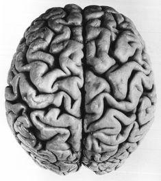 human brain, Facies Dorsalis Cerebri, from Le Cerveau de Joseph Pilsudski, by Maximilien Rose, 1938