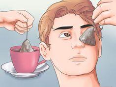 Además de las ojeras, también se pueden formar unas bolsistas debajo de los ojos, estas son causadas porque se almacenan toxinas, líquidos y grasa en esta zona.