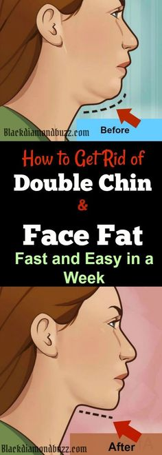 How to Get Rid of Double Chin and Face Fat Fast and Easy in a Week – Home Remedies plus Regular Exercise. A double chin is when a person has sagging skin right under the chin, much like a cankerous growth, making the person look like having two chins. It occurs when another layer of fat forms below the chin sometimes as a result of excessive weight. While this problem may indicate that the person is overweight or has lost too much weight within a very short period, it is necessary to…