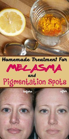 Homemade Treatment For Melasma And Pigmentation Spots