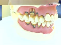 Dentaltown - Did you know even a typodont can get periodontal disease if it doesn't brush and floss twice per day?