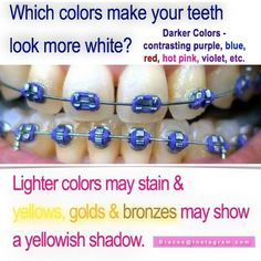 Choose the right color perfect color for cheer season Braces Humor, Braces Food, Braces Tips, Teeth Braces, Braces Transformation, Braces Problems, Misaligned Teeth, Getting Braces, Cute Braces
