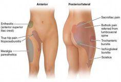Right Side and Hip Pain | Diagram showing various hip pain points by different illnesses #NotJustAPainInTheNeck! My Hip Hurts, Bursitis Hip, Hip Flexor Pain, Hip Flexors, Hip Pain Relief, Lower Back Pain Relief, Sciatica Pain, Sciatic Nerve, Back Pain