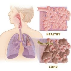 54 Best Health    COPD images in 2013 | Health, wellness, Asthma