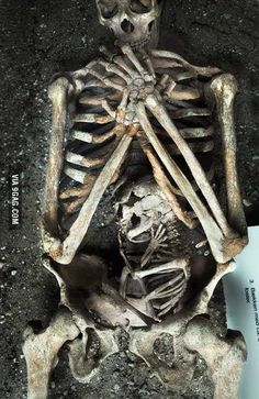 What a moving photograph. A skeleton of a mother, and her baby, who both died during her pregnancy.