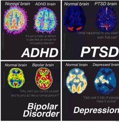 Normal , depression, ADHD, ptsd, and bipolar disorder brain differences. Stress Disorders, Mental Disorders, Bipolar Disorder, Psychology Disorders, Adhd Brain, E Mc2, After Life, Psychology Facts, Science Classroom
