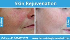 For #Botox #treatment Contact Dr. Rinky Kapoor - http://dermatologistmumbai.com/dermatology/botox.html