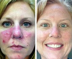 7 months after unblemish and sooth regimens
