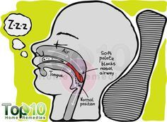 10 ways to stop snoring ♥ #peppermint #snoring