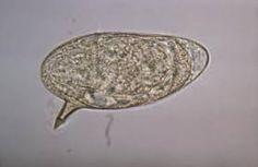 Schistosoma mansoni- ou cu spina laterală si mare