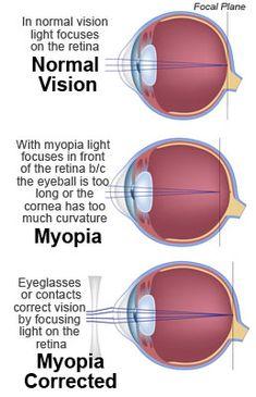 Myopia(Nearsightedness): Symptoms, Causes & Treatment Eye Anatomy, Human Body Anatomy, Human Anatomy And Physiology, Eye Medicine, Biology Facts, Eye Facts, Eye Sight Improvement, Medical Anatomy, Medical Science