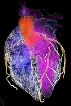 cardiac CT. Cool pic