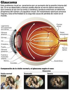 Glaucoma other Name Eye Tension intraoccular pressure > 20 mmHg TREATMENT Beta Blockers
