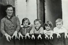 "Cleft Hands Cleft hands are caused by a deficiency known clinically as ectrodactyly, where the hands form improperly. Individuals afflicted with the malformation, like this Spanish mother and her children (date unknown), would would often submit themselves to sideshows and circuses, referring to themselves as ""lobster people."""