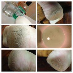 Rissige Fersen Abhilfe 1/4 Tasse listerine, 1/4 Tasse Essig und 1/2 Tasse warmes Wasser. Die Haut fiel direkt aus, wie Sie in der Schüssel kann sehen, aber vielleicht brauchte ich eine doppelte Dosis wegen der Schwere.