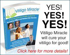 VITILIGO MIRACLE BY DAVID PALTROW – MY HONEST REVIEW